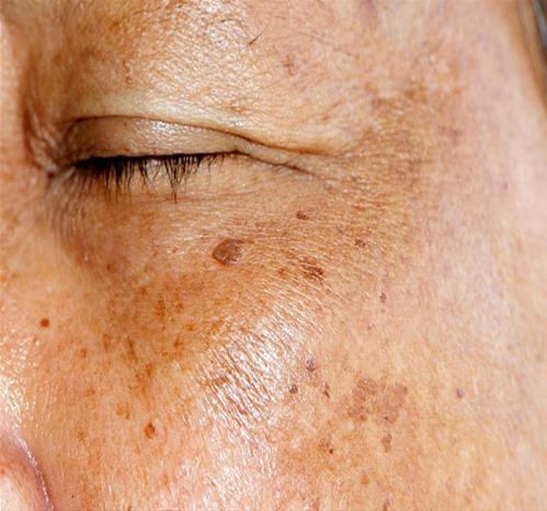 3 dấu hiệu này trên mặt, có thể gan bạn đang bị xơ cứng